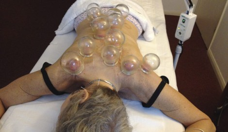 First attempts of acupuncture and cupping with Dr Deng - a bit OTT in retrospect!
